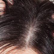 Masalah Rambut dan Solusinya