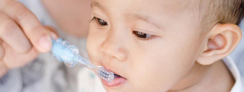 penyebab gigi berlubang dan cara mencegahnya